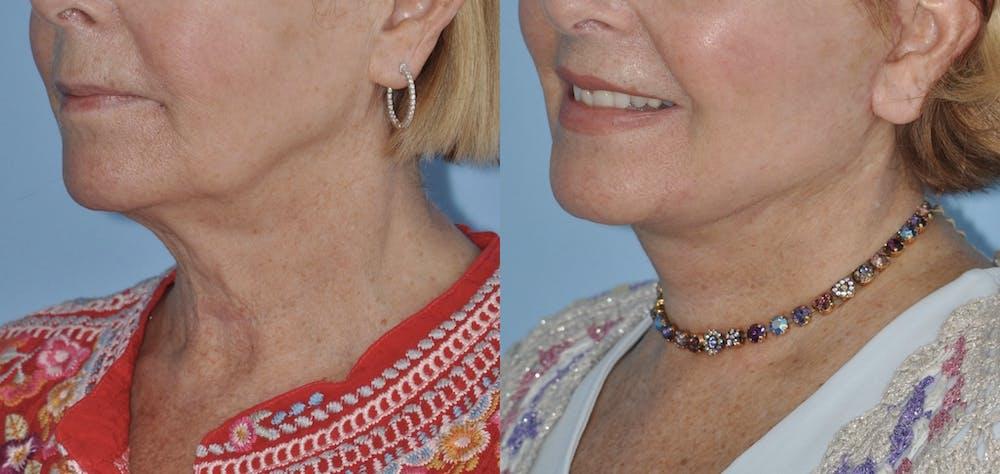 Facelift Gallery - Patient 59047942 - Image 2