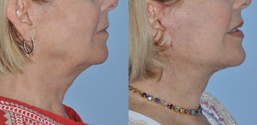 Facelift Gallery - Patient 59047942 - Image 3