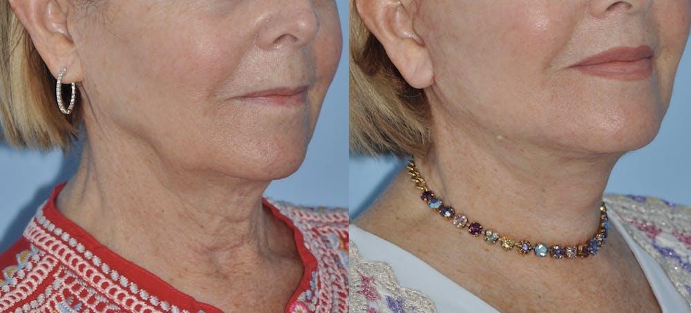 Facelift Gallery - Patient 59047942 - Image 4