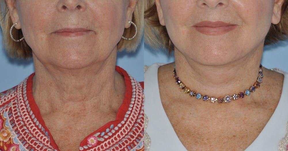 Facelift Gallery - Patient 59047942 - Image 5