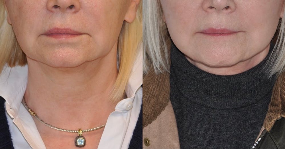 Facelift Gallery - Patient 59047944 - Image 1