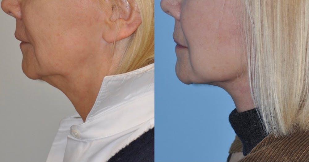 Facelift Gallery - Patient 59047944 - Image 2