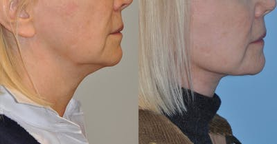 Facelift Gallery - Patient 59047944 - Image 4
