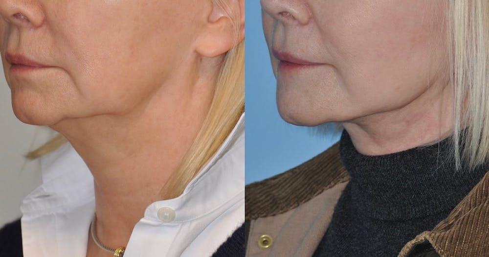Facelift Gallery - Patient 59047944 - Image 5