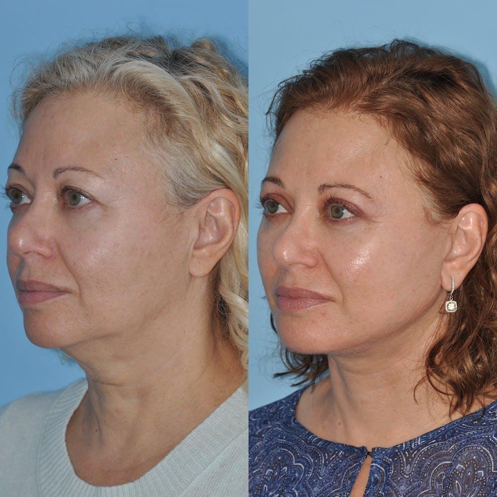 Facelift Gallery - Patient 59047947 - Image 1