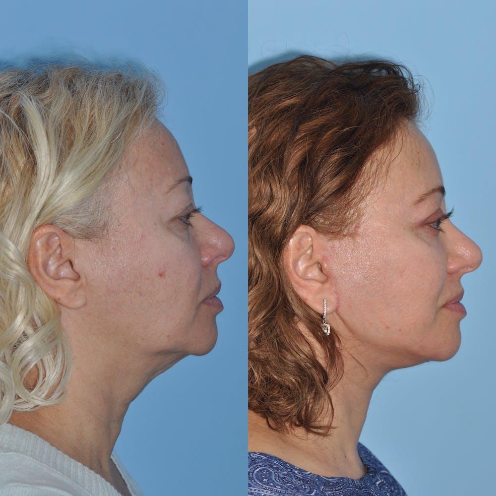 Facelift Gallery - Patient 59047947 - Image 2
