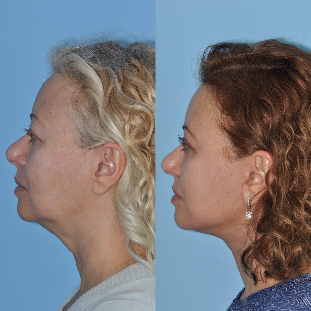 Facelift Gallery - Patient 59047947 - Image 3