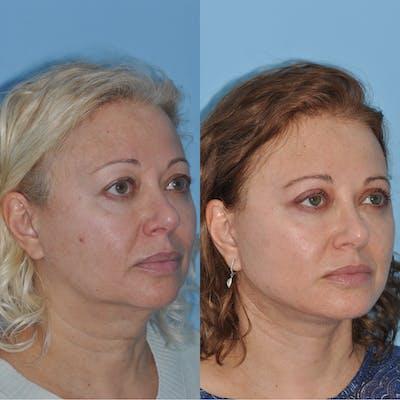 Facelift Gallery - Patient 59047947 - Image 4