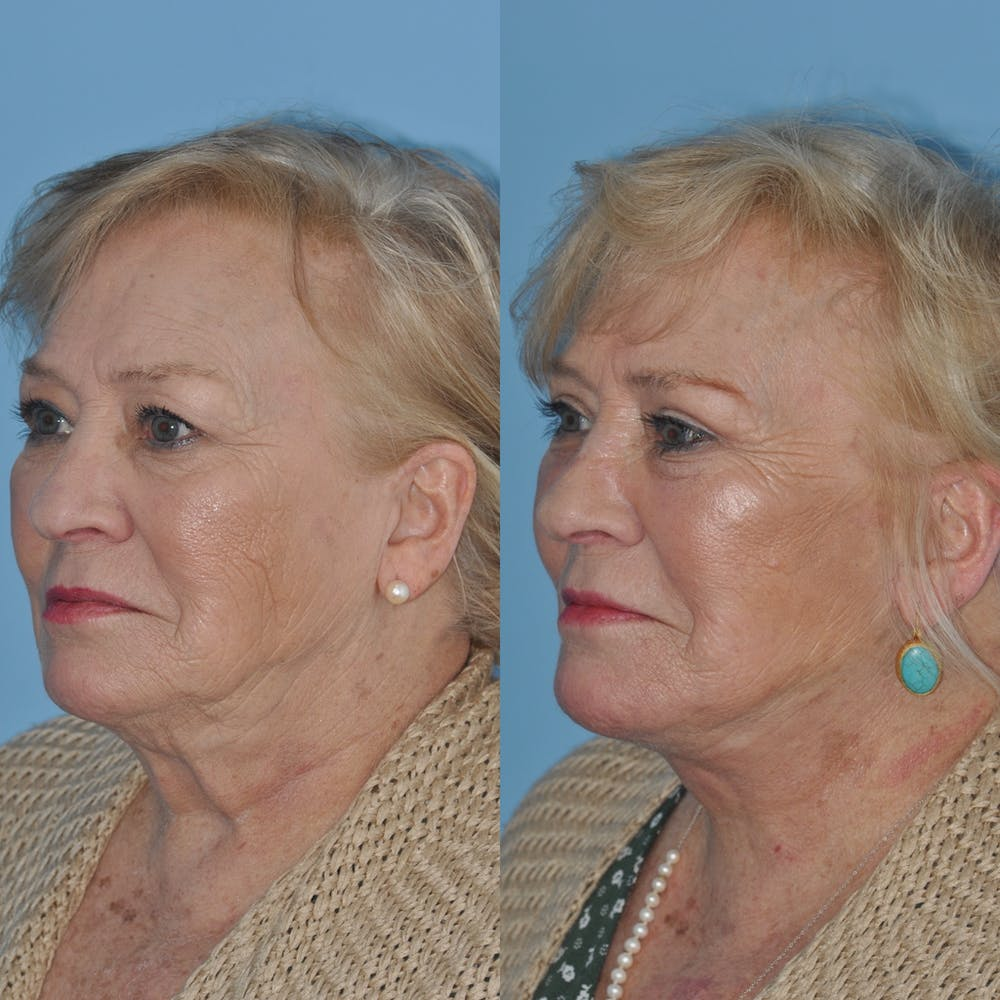 Facelift Gallery - Patient 59047949 - Image 1