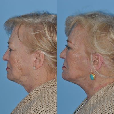 Facelift Gallery - Patient 59047949 - Image 2