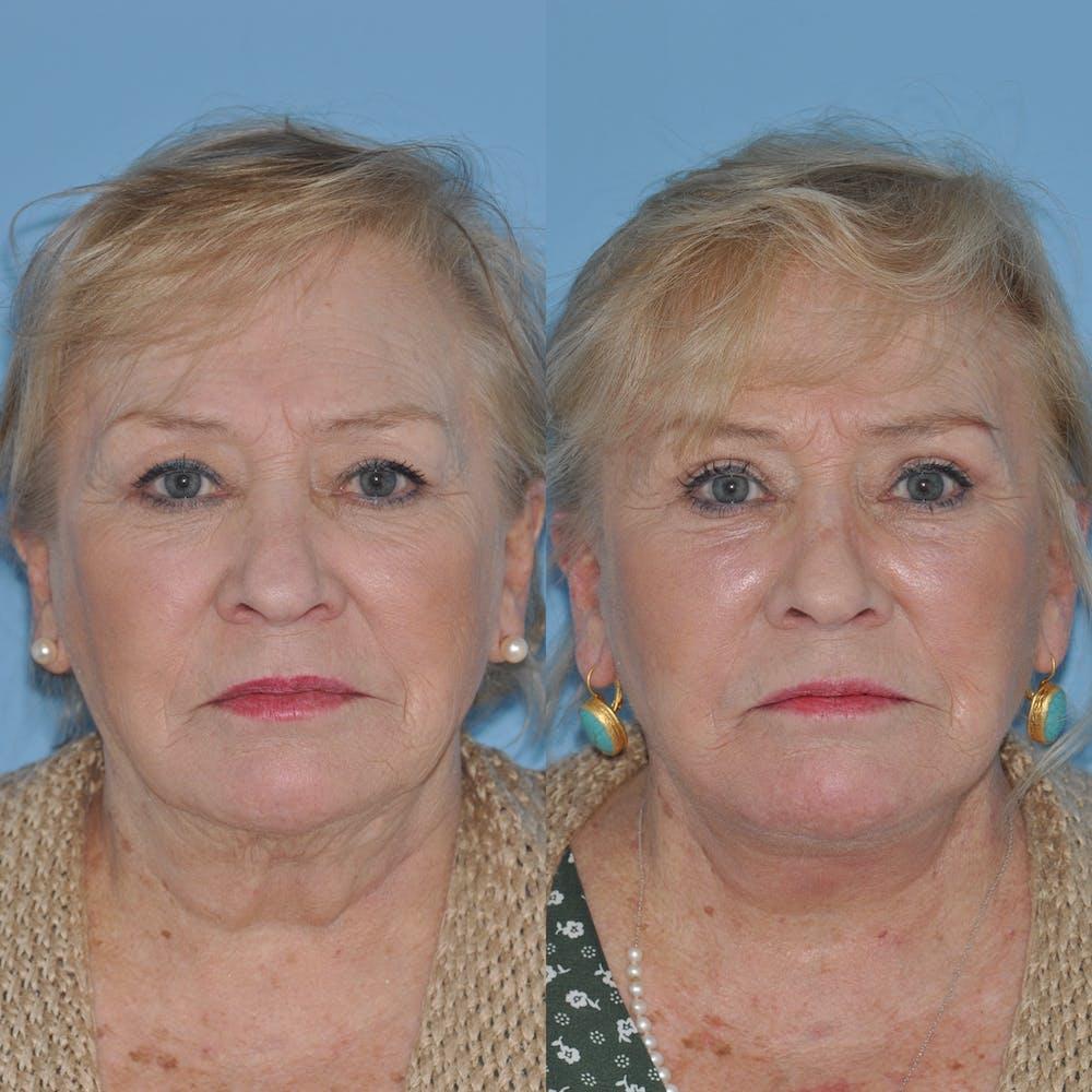 Facelift Gallery - Patient 59047949 - Image 3