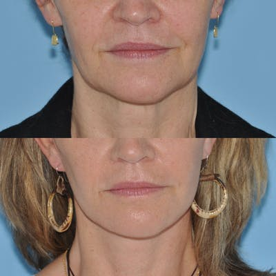 Facelift Gallery - Patient 59047951 - Image 1