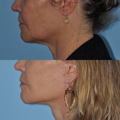 Facelift Gallery - Patient 59047951 - Image 2