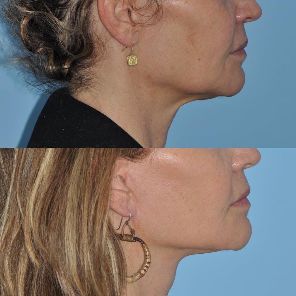 Facelift Gallery - Patient 59047951 - Image 4