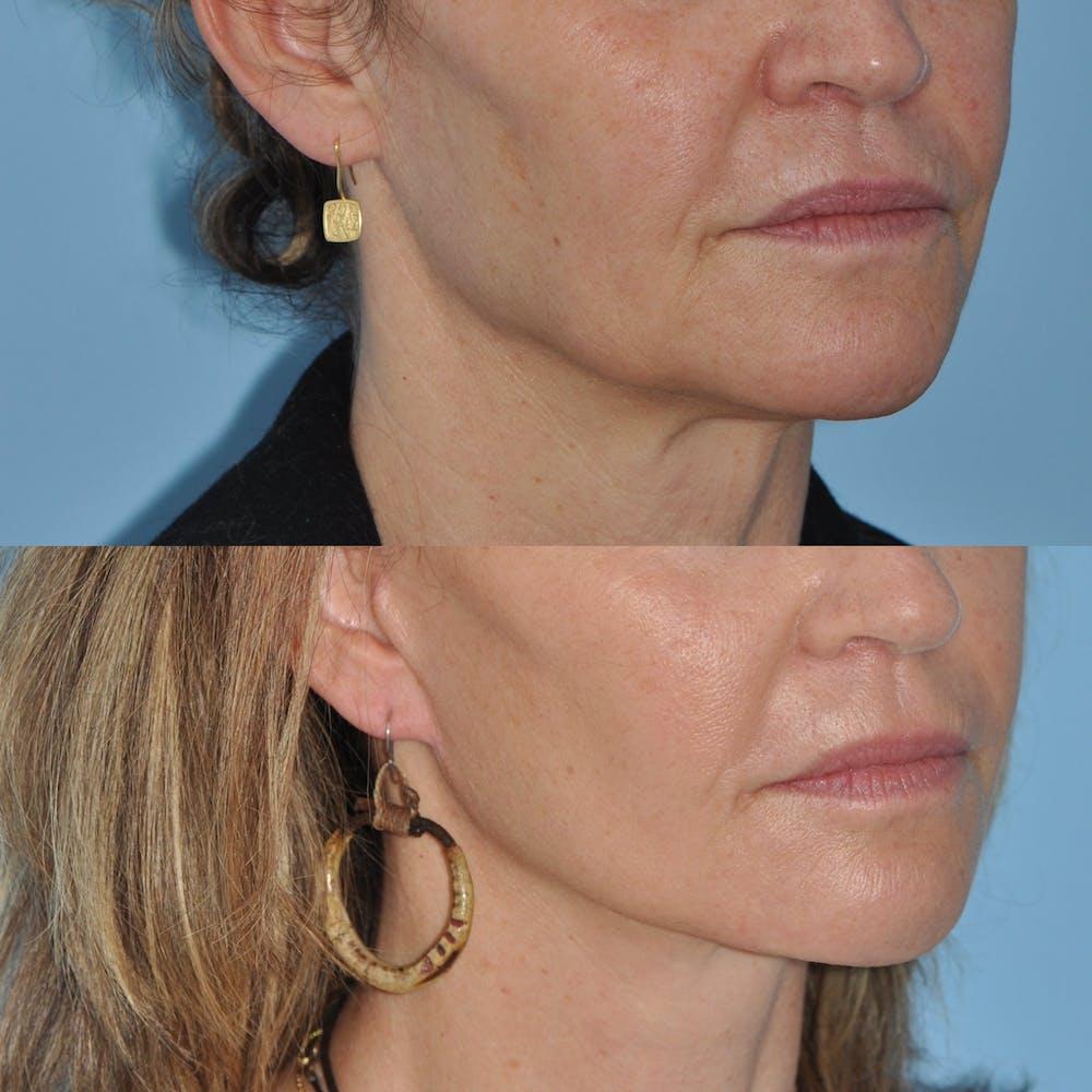 Facelift Gallery - Patient 59047951 - Image 5