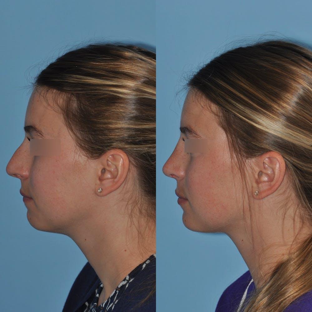 Rhinoplasty Gallery - Patient 59075280 - Image 3