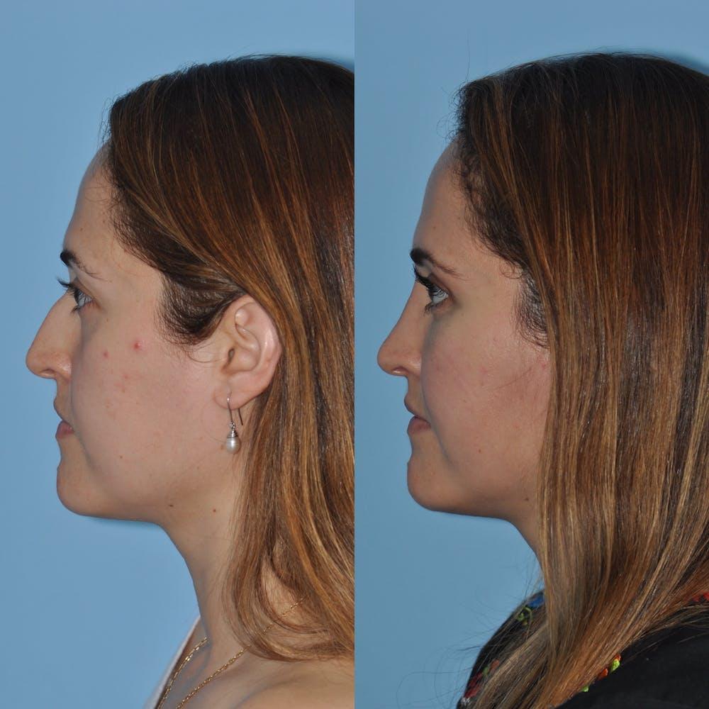 Rhinoplasty Gallery - Patient 59075281 - Image 3