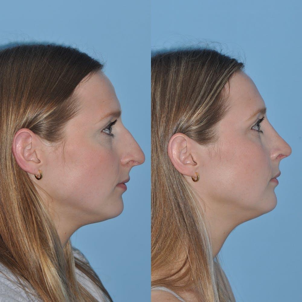 Rhinoplasty Gallery - Patient 59075286 - Image 3
