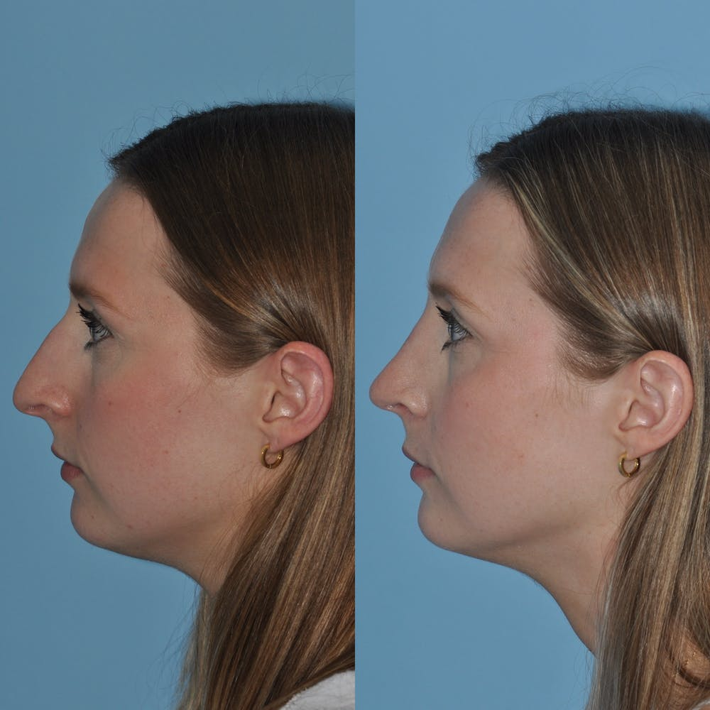 Rhinoplasty Gallery - Patient 59075286 - Image 4