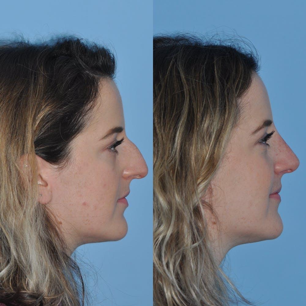 Rhinoplasty Gallery - Patient 59075287 - Image 5