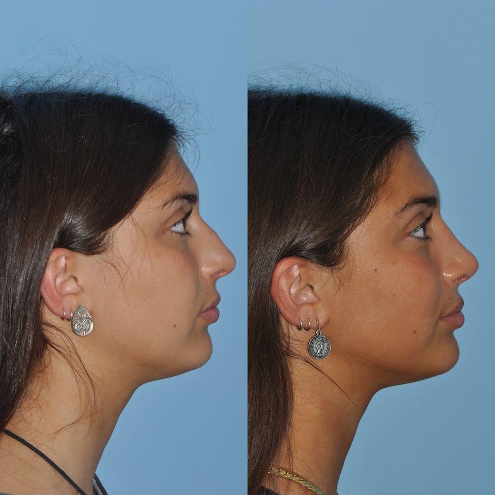 Rhinoplasty Gallery - Patient 59075289 - Image 1