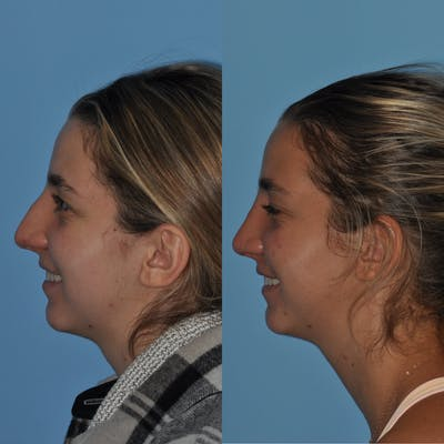 Rhinoplasty Gallery - Patient 59075295 - Image 1