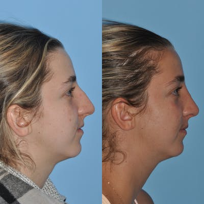 Rhinoplasty Gallery - Patient 59075295 - Image 8