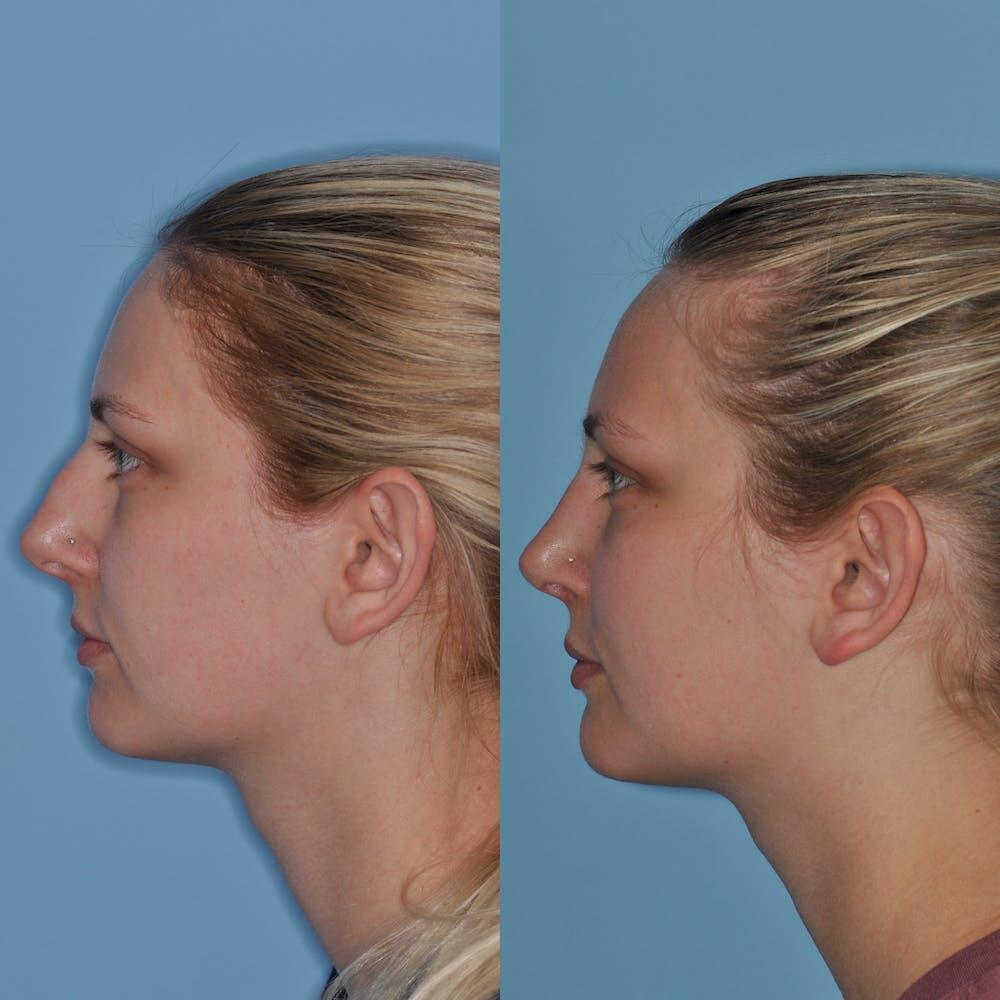 Rhinoplasty Gallery - Patient 59075296 - Image 5