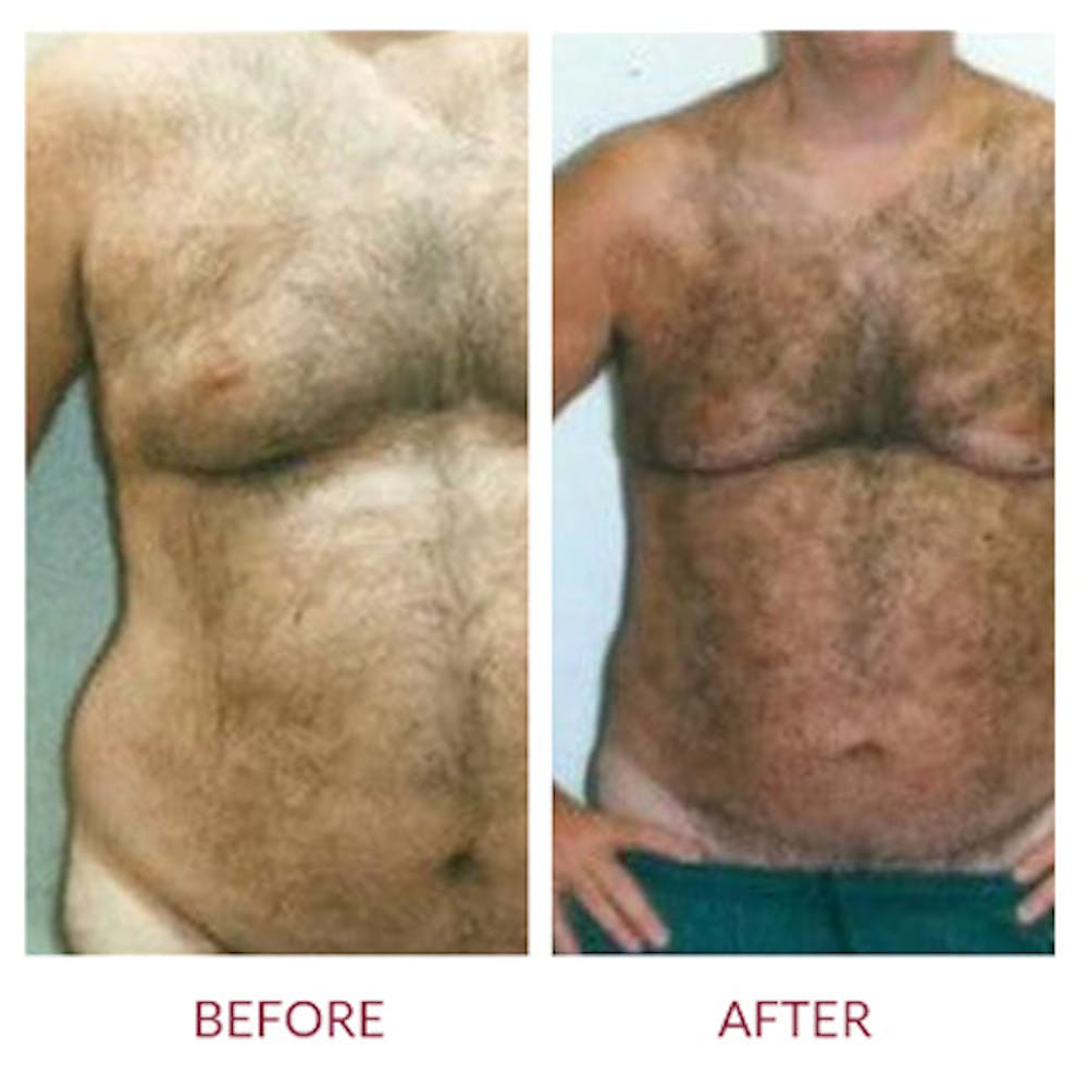 Liposuction Gallery - Patient 26868609 - Image 1