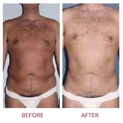 Liposuction Gallery - Patient 26868644 - Image 1