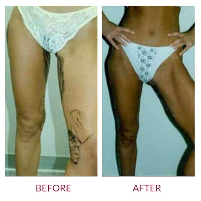 Liposuction Gallery - Patient 26868643 - Image 1