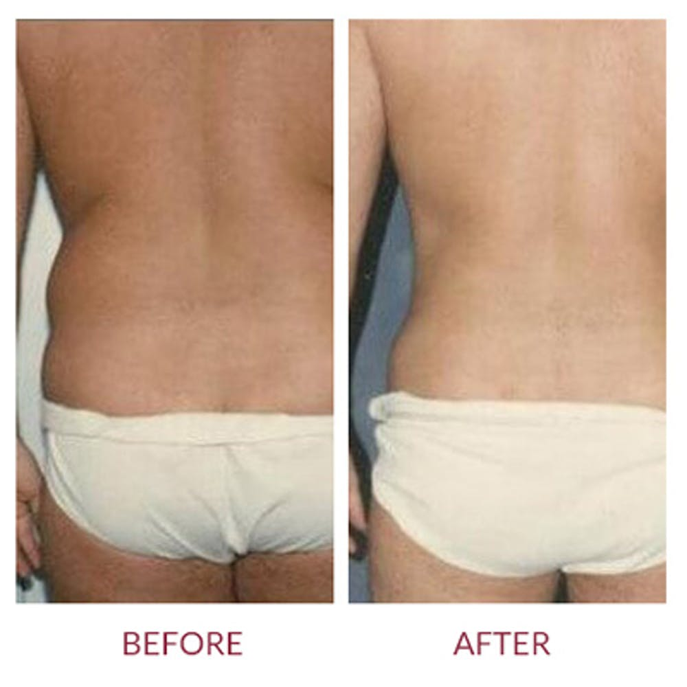 Liposuction Gallery - Patient 26868642 - Image 1