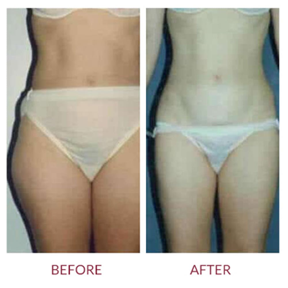 Liposuction Gallery - Patient 26868641 - Image 1