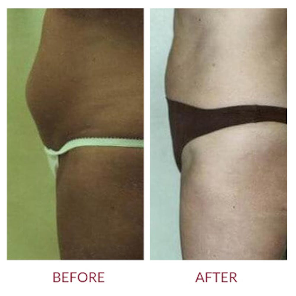 Tummy Tuck Gallery - Patient 26868664 - Image 1