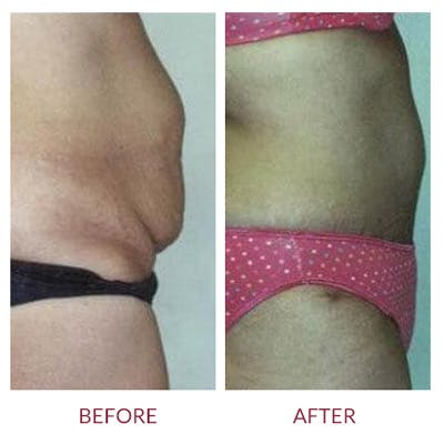 Tummy Tuck Gallery - Patient 26868663 - Image 1