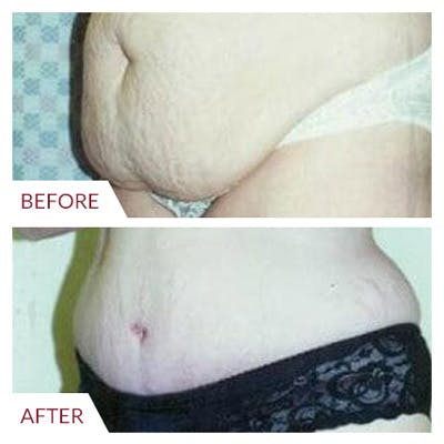 Tummy Tuck Gallery - Patient 26868662 - Image 1