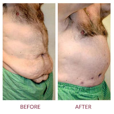 Tummy Tuck Gallery - Patient 26868661 - Image 6