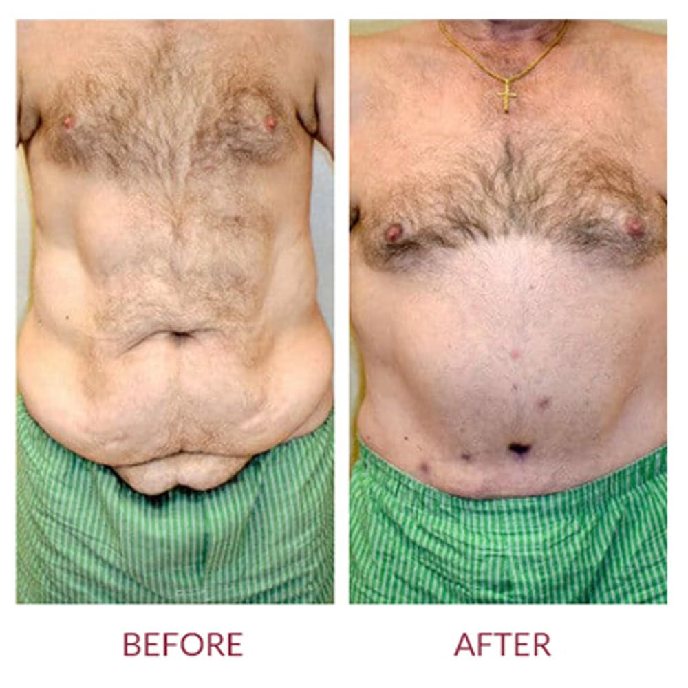 Tummy Tuck Gallery - Patient 26868661 - Image 5