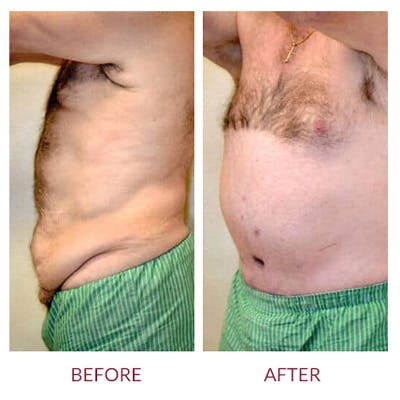 Tummy Tuck Gallery - Patient 26868661 - Image 4