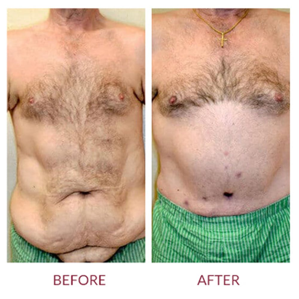 Tummy Tuck Gallery - Patient 26868661 - Image 3