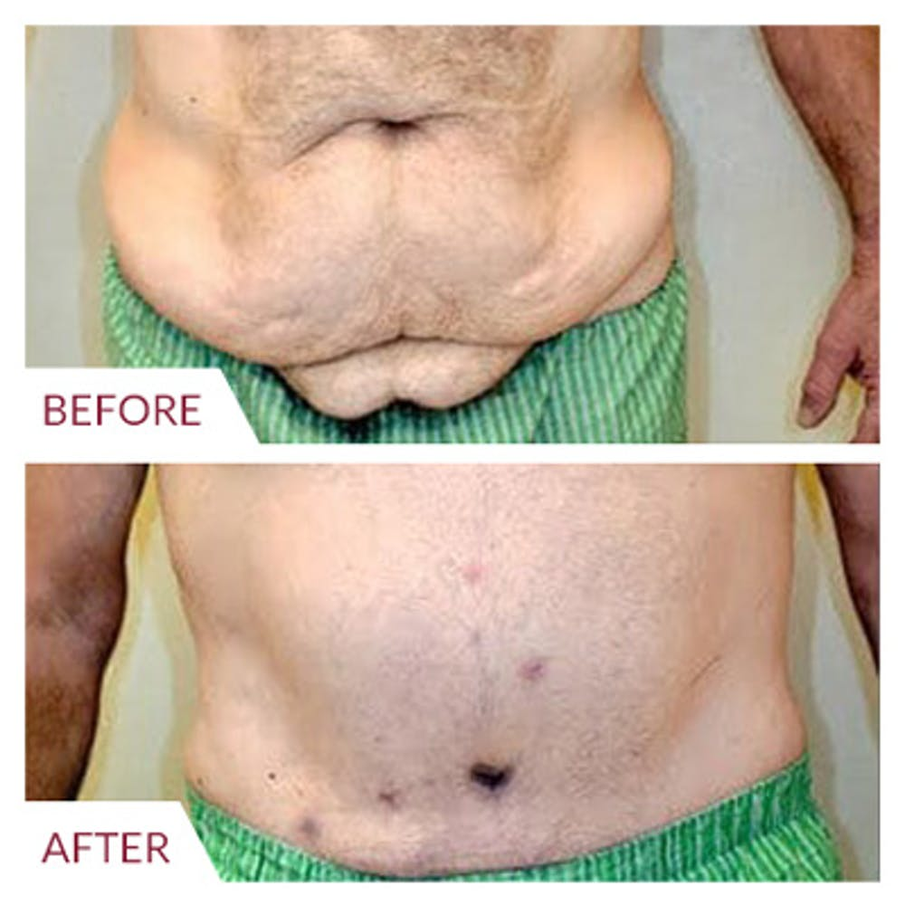 Tummy Tuck Gallery - Patient 26868661 - Image 2
