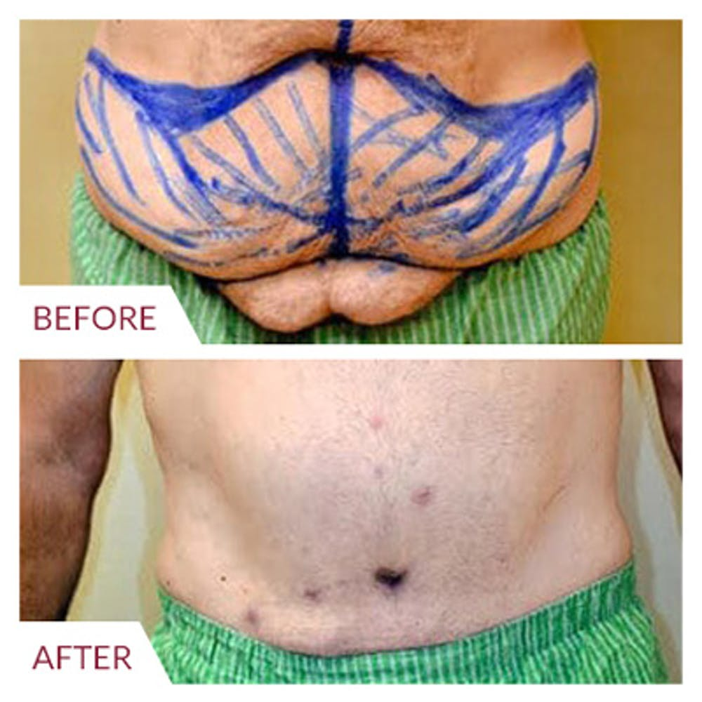 Tummy Tuck Gallery - Patient 26868661 - Image 1