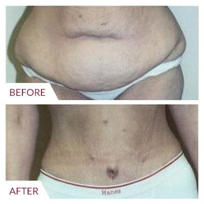 Tummy Tuck Gallery - Patient 26868660 - Image 1