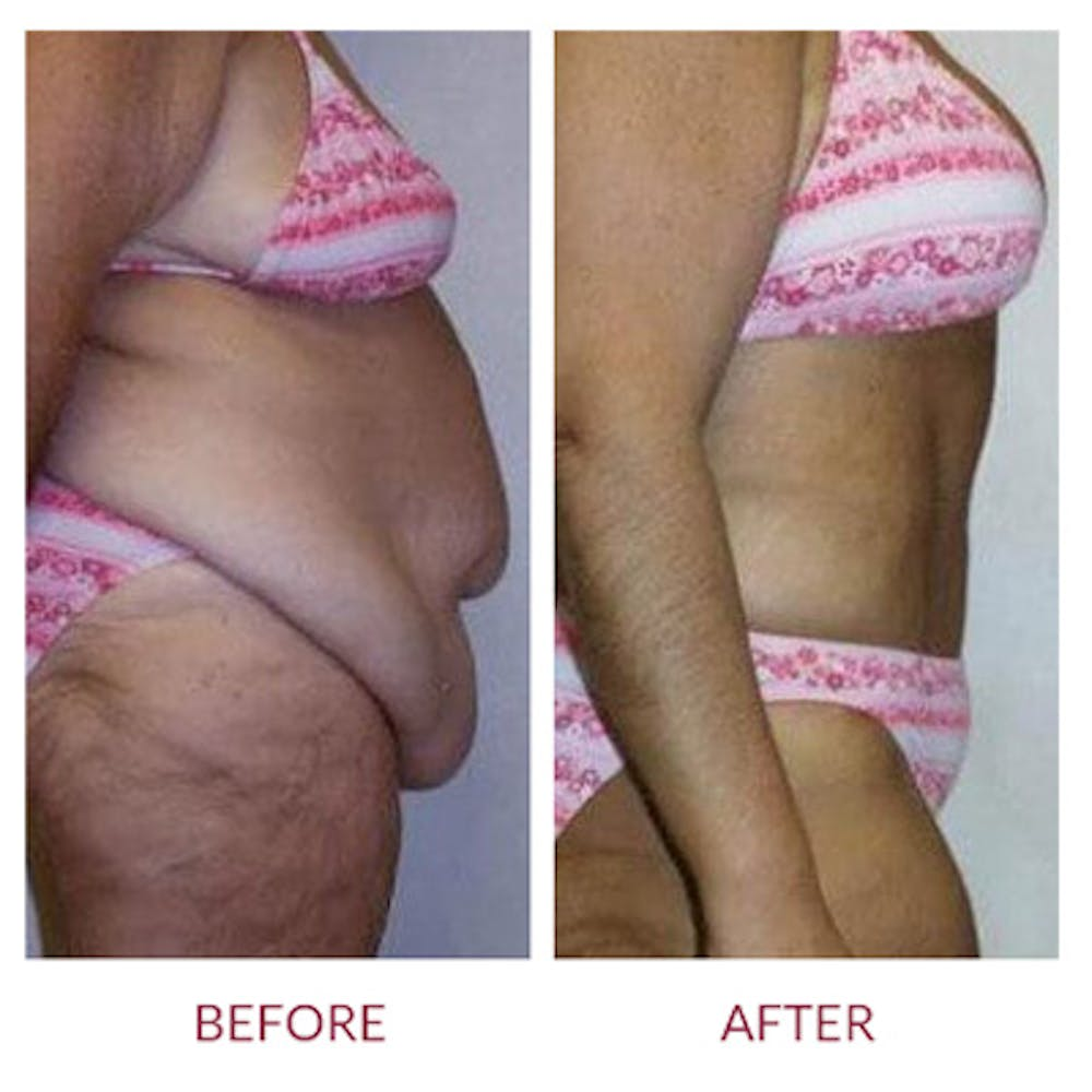 Tummy Tuck Gallery - Patient 26868659 - Image 2