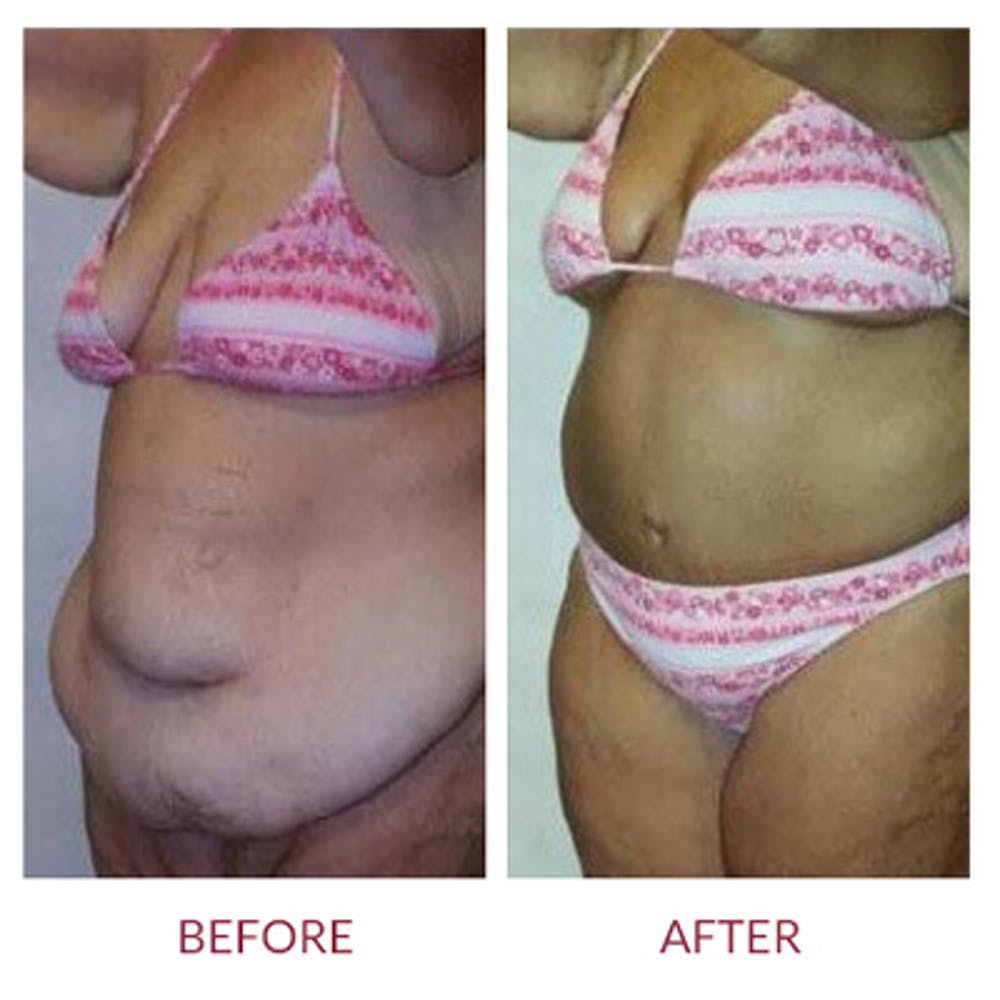 Tummy Tuck Gallery - Patient 26868659 - Image 1
