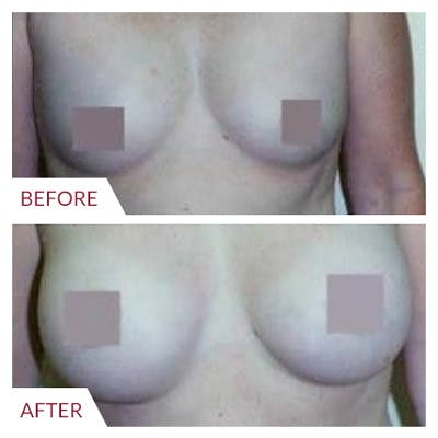 Breast Augmentation Gallery - Patient 26868726 - Image 1