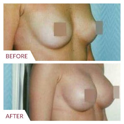 Breast Augmentation Gallery - Patient 26868725 - Image 1