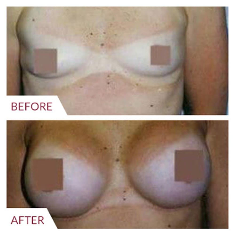 Breast Augmentation Gallery - Patient 26868724 - Image 1