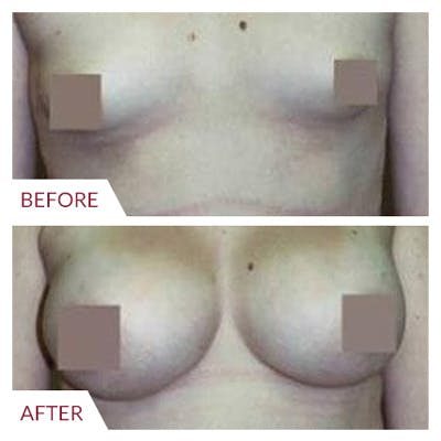 Breast Augmentation Gallery - Patient 26868723 - Image 1