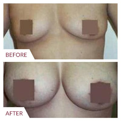 Breast Augmentation Gallery - Patient 26868722 - Image 1